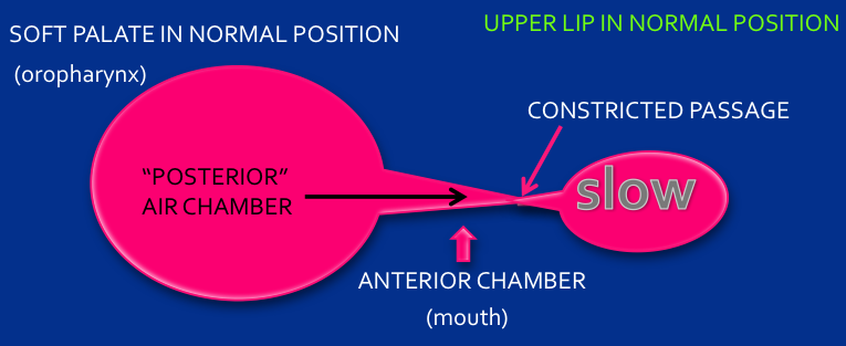 Figure 3: Normal oropharynx space resulting in slower air stream